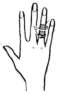 Как снять с пальца кольцо