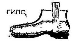 Как растянуть обув